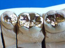 Inlays und Onlays aus Gold