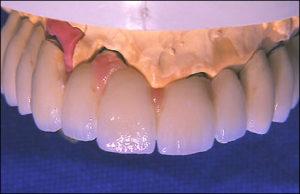 Dentalprodukte Implantat