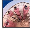 Implantat-Suprastukturen
